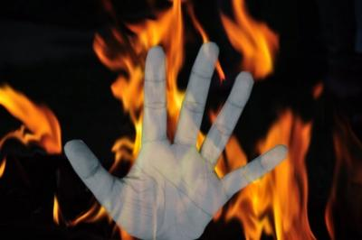Two farmers burnt to death in UP district